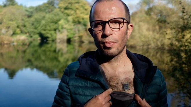 """Los «biohackers» que transforman su cuerpo con implantes y dietas extremas: """"He creado un nuevo sentido humano"""""""
